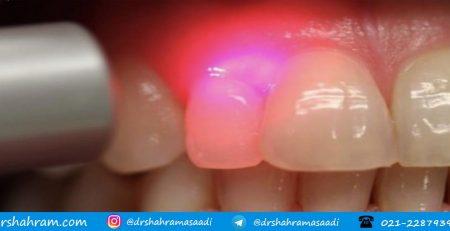 کاهش حساسیت دندان با لیزر